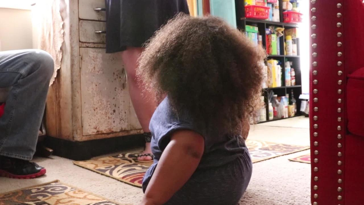 After finding out her unborn daughter La'Mareea would be born without legs, Angela Neal decided to continue with the pregnancy. Now she's a viral star.