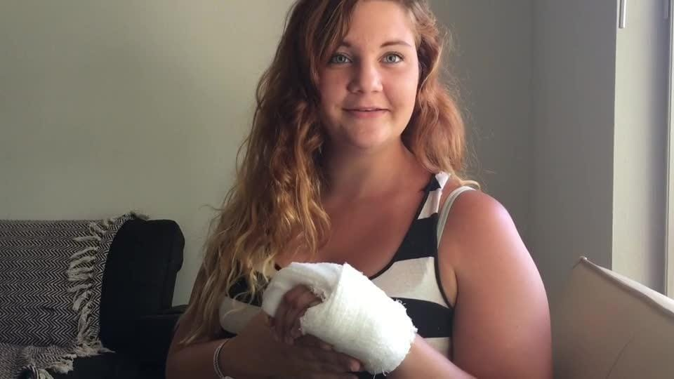 Heather Orr of Palm Bay talks about being bitten in the hand by a shark while swimming at Ocean Ave. Posted April 2017
