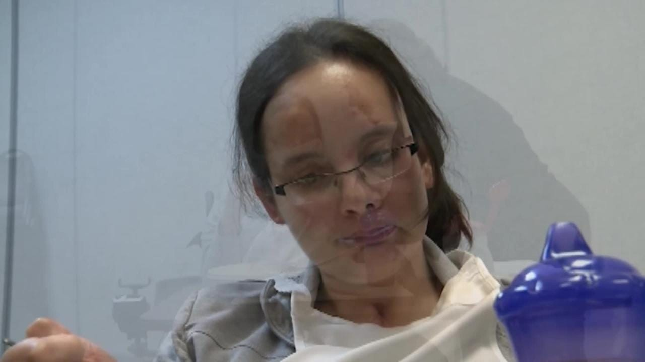 Elisabeth Ostendorf recovering from significant brain injuries at Origami Brain Injury Rehabilitation Center in Mason.