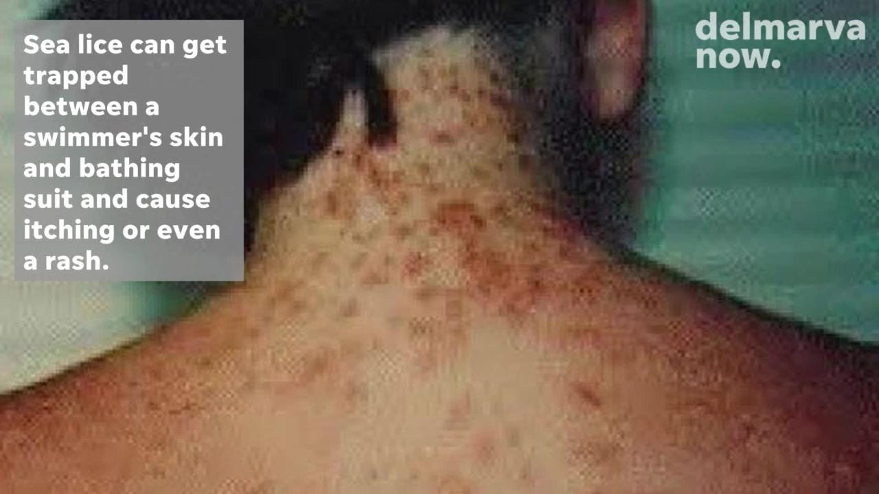 WATCH: What are sea lice?