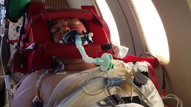 Plane crash victim survives horrific burns, vows to create change