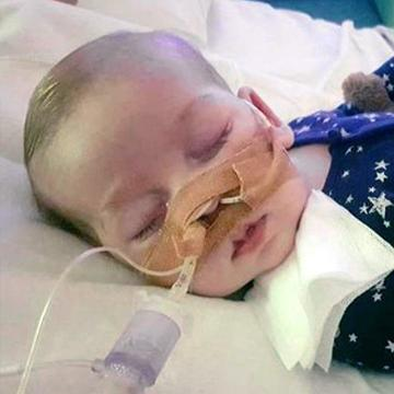 11-month-old Charlie Gard has died