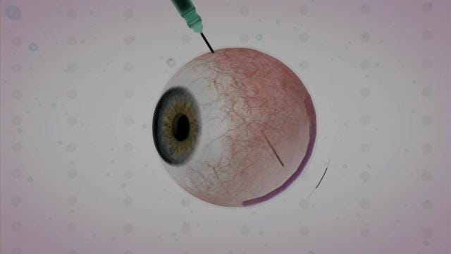 FDA panel considers gene therapy for blindness