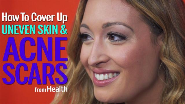 How to cover up acne scars