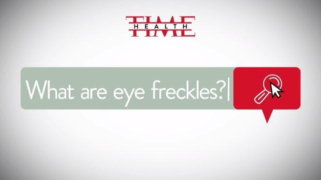 What are eye freckles?