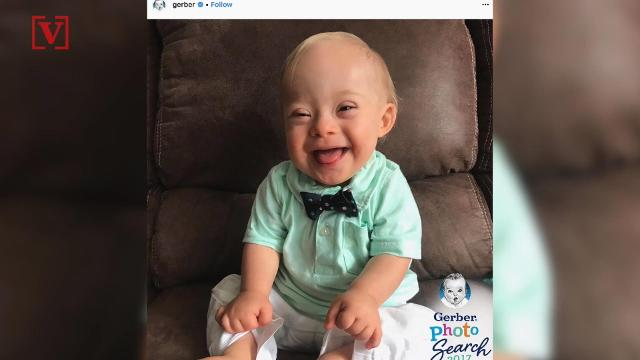 f0c850873 Gerber baby Lucas posed with first-ever Gerber baby  Twitter loves it