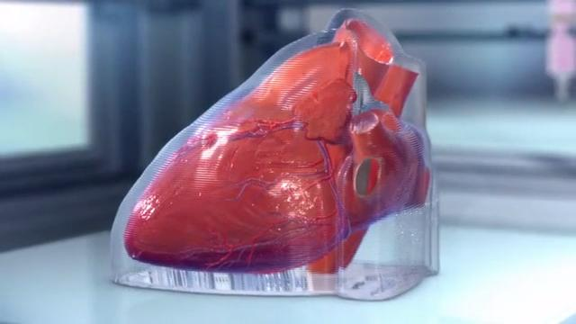 A startup called BioLife4D is working on a way to print functioning hearts using patients' own cells.