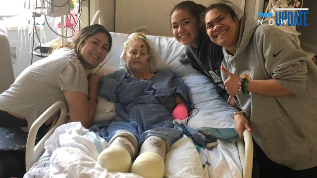 Mom loses limbs after rare complications from cold and pneumonia