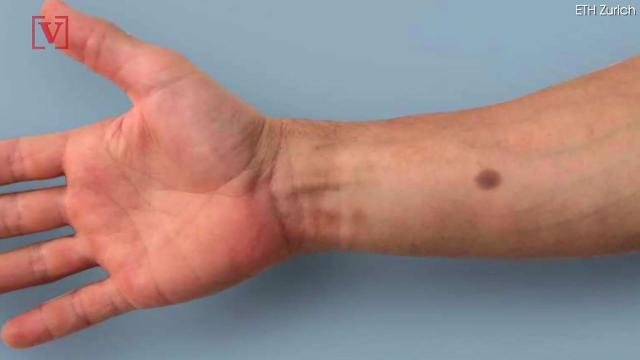 Skin implant creates mole-like tattoo that could detect cancer