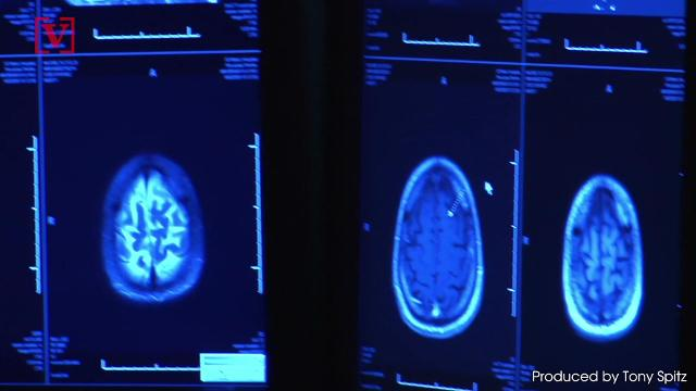 New study: Possible link between cell phone use and some brain cancers