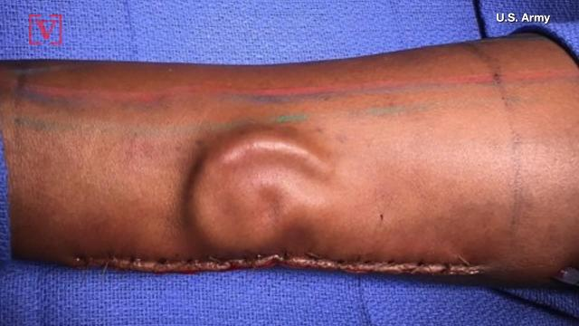 Army doctors 'grow' new ear for soldier inside her arm