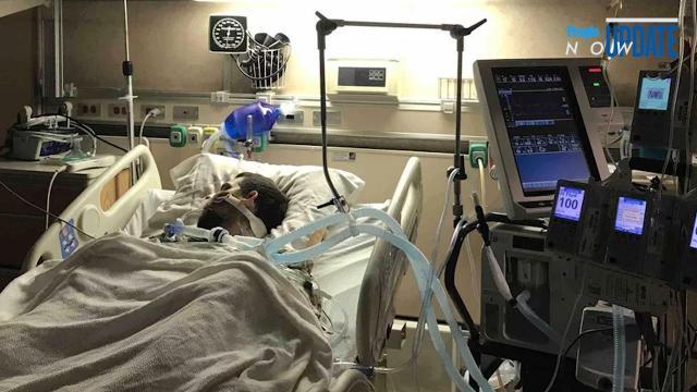 Alabama father paralyzed after venomous coral snake bite