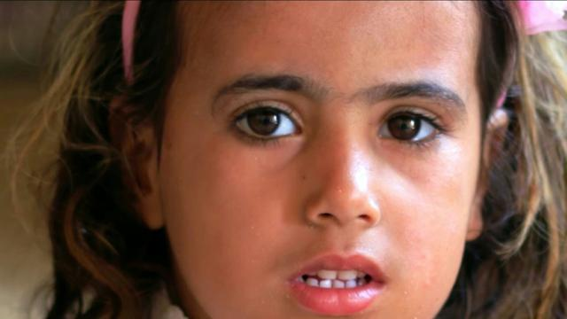 In an Iraqi village, a little girl hides her skin disease