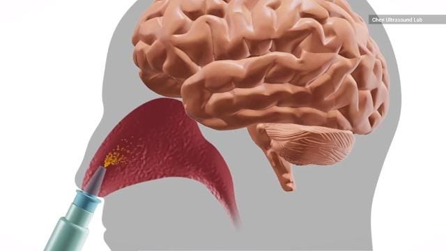 Scientists are testing nasal spray to treat brain cancer