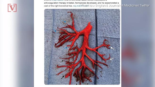 Man coughs up mysterious blood clot, shocking doctors