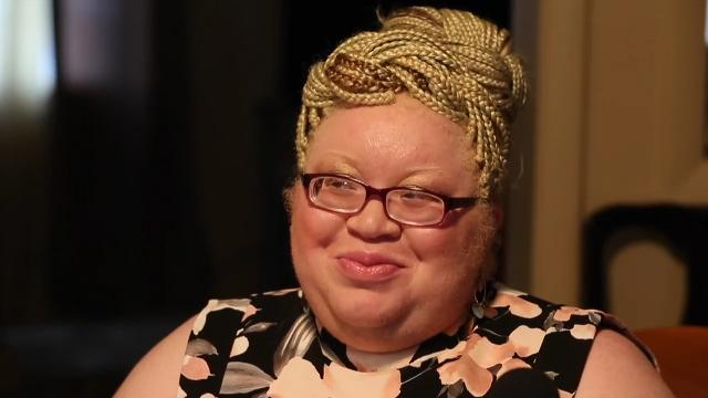 TEDX talker to share story of growing up albino