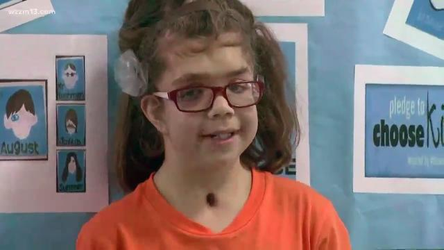 A Michigan girl's story mirrors the movie 'Wonder.'