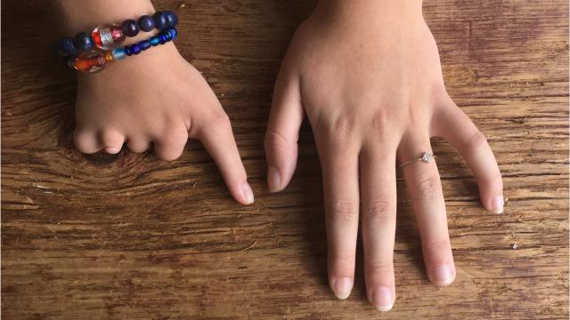 The Lucky Fin Project is a Royal Oak nonprofit that acts as a resource and support network for the limb difference community around the world. Wochit