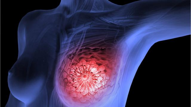 Avoiding chemo after breast cancer