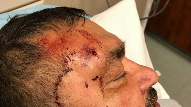 The Attorney General's Office is investigating an incident outside a Wagner nursing home after an excessive force claim from the family of a Yankton Sioux Tribal member who'd rushed there to see his dying mother.
