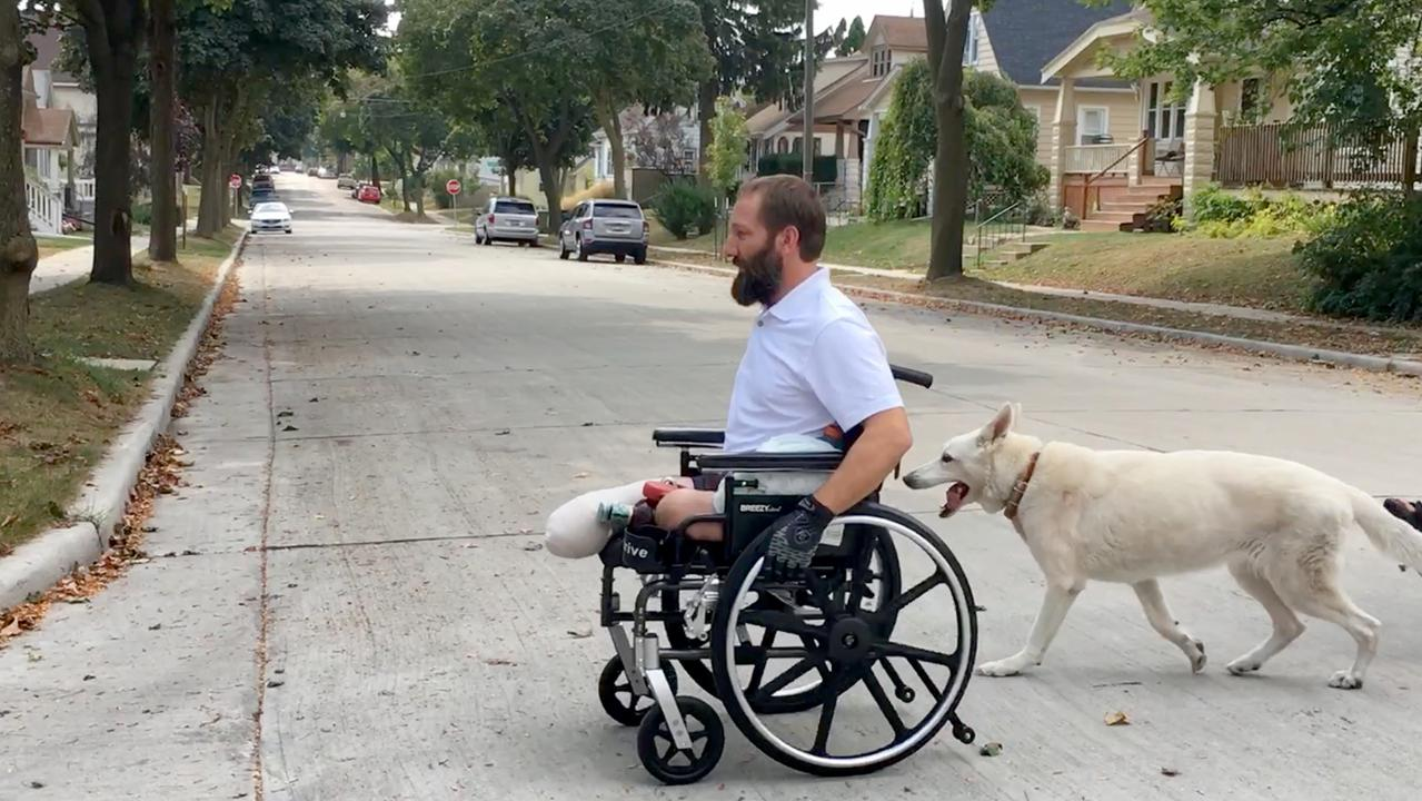 Man works to recover after losing both legs