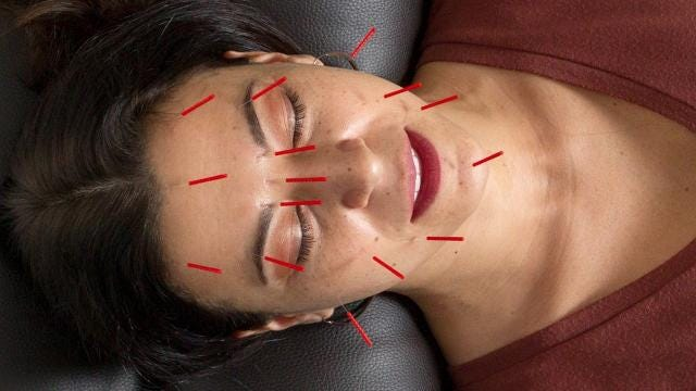Modern Acupuncture offers walk-in sessions and will be located next to Whole Foods.