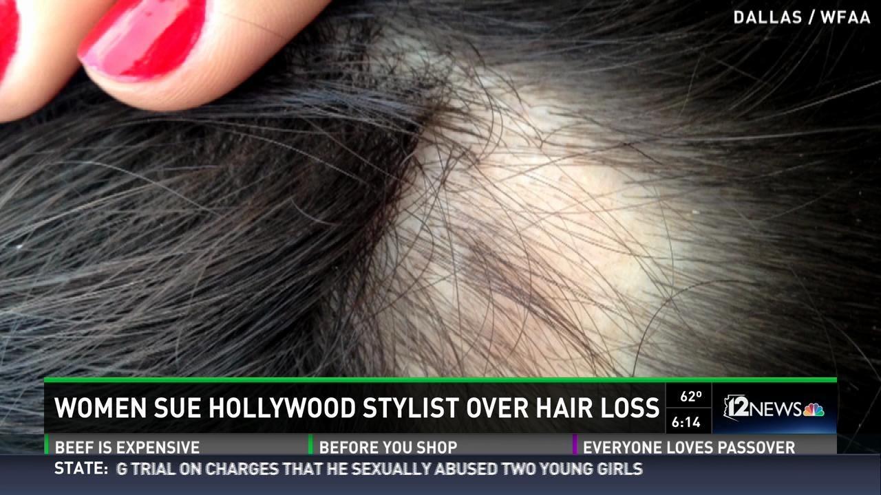 Women Sue Wen For Hair Loss