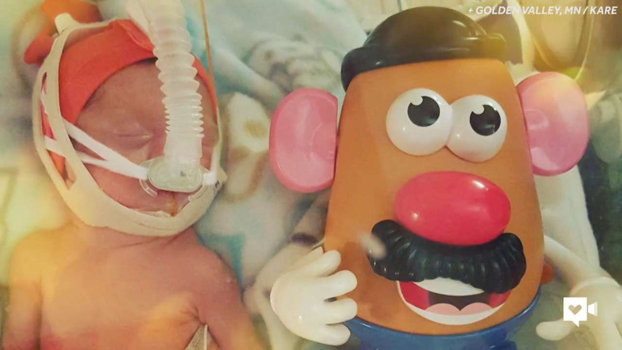 Mr. Potato Head a sign of hope for micro preemies