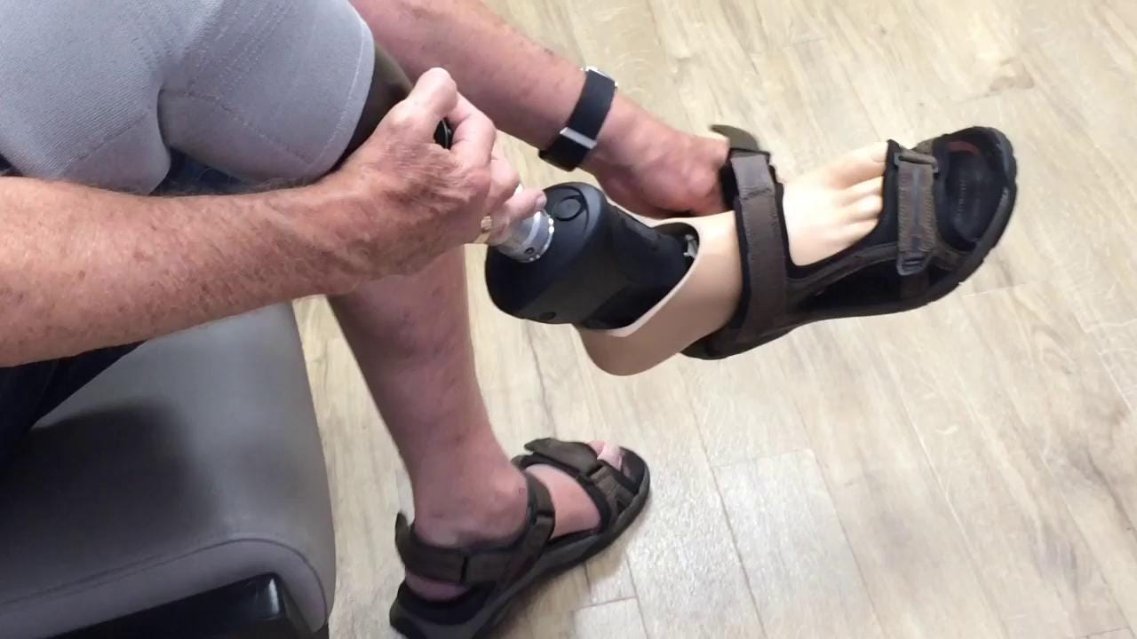 Cathedral City resident Patrick Tierney is the first person to be fit with a high tech waterproof microprocessor-controlled prosthetic ankle-foot.