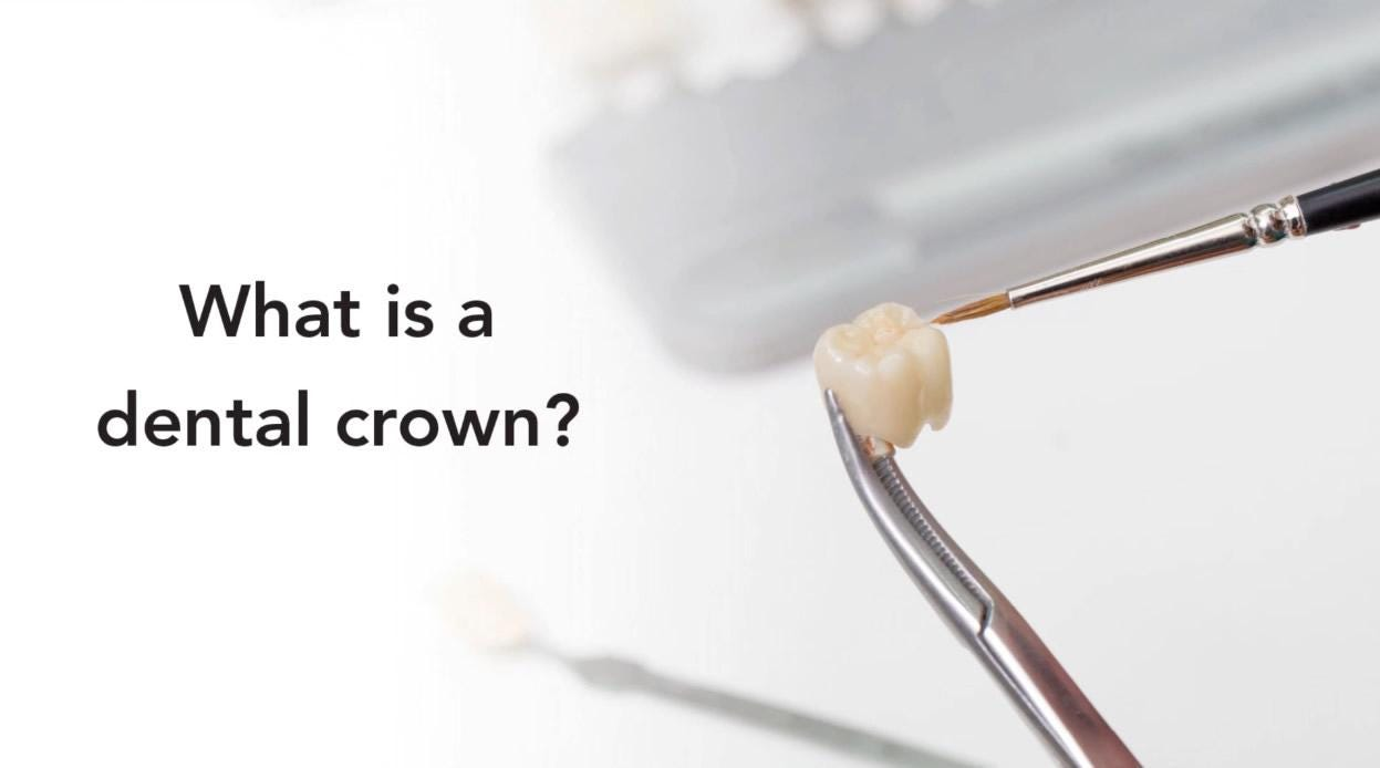 What you need to know about dental crowns